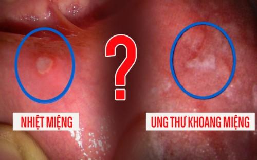 cách phòng ngừa nhiệt miệng