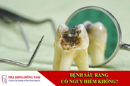 bệnh sâu răng có nguy hiểm không