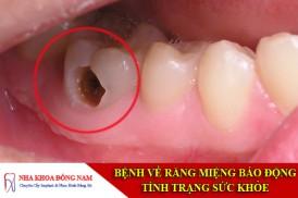 bệnh sâu răng là gì