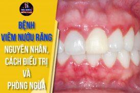 bệnh viêm nướu răng nguyên nhân cách điều trị và phòng ngừa