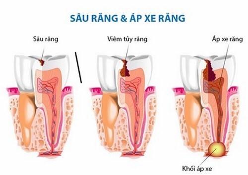 triệu chứng của áp xe chân răng