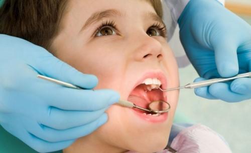 bị gãy răng thì làm cách nào để sơ cứu 1