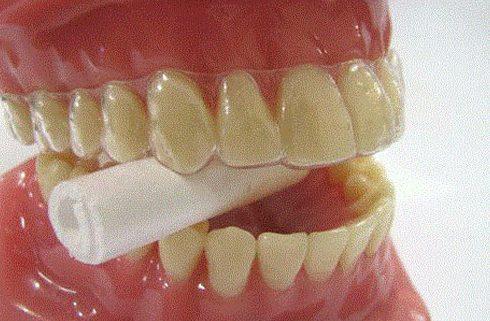 bị gảy răng thì làm cách nào để sơ cứu 3