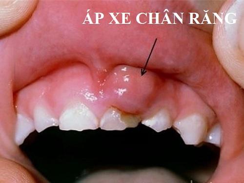 biến chứng sâu răng