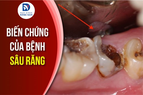 Biến chứng của bệnh sâu răng có ảnh hưởng đến sức khỏe không