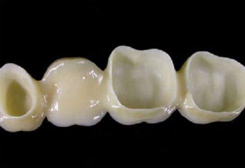 Bọc răng sứ bị hôi là do đâu và cách xử lý như thế nào 6