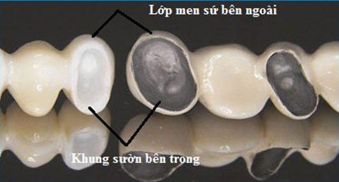 bọc răng sứ có bị sâu hay không 1