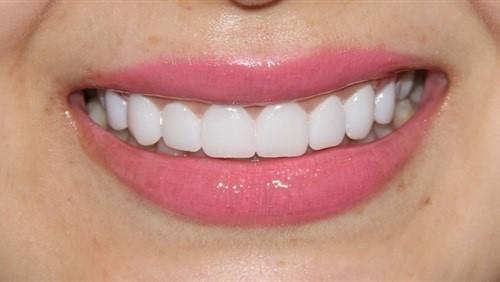 bọc răng sứ có bị sâu hay không 2