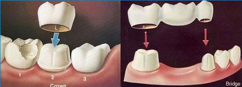 bọc răng sứ có cần mài 2 răng kế bên không 1