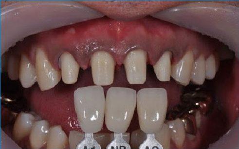 bọc răng sứ có cần mài 2 răng kế bên không 2