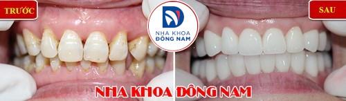 bọc răng sứ có cần mài 2 răng kế bên không 3