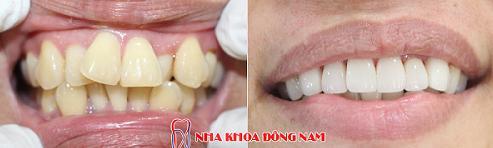 bọc sứ răng mọc lệch lạc được không và mất bao lâu -2