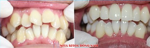bọc sứ răng mọc lệch lạc được không và mất bao lâu -3