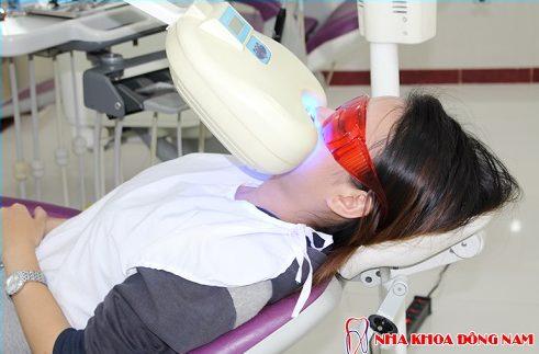 bọc sứ răng mọc lệch lạc được không và mất bao lâu -4