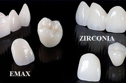 bọc sứ răng mọc lệch lạc được không và mất bao lâu -6