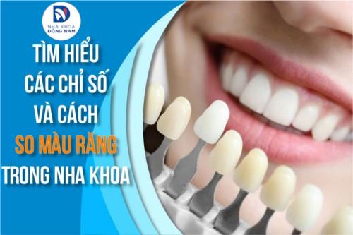 Các Chỉ Số Và Cách So Màu Răng Trong Nha Khoa
