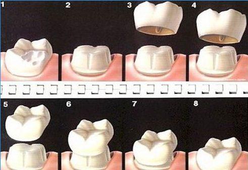 cách xử lý khi răng sứ bị rớt ra 1