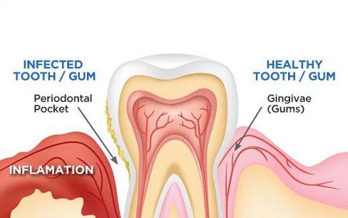 cách chăm sóc nướu răng đúng cách 2