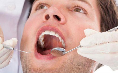 Cách chăm sóc răng sứ để có tuổi thọ được cao 3