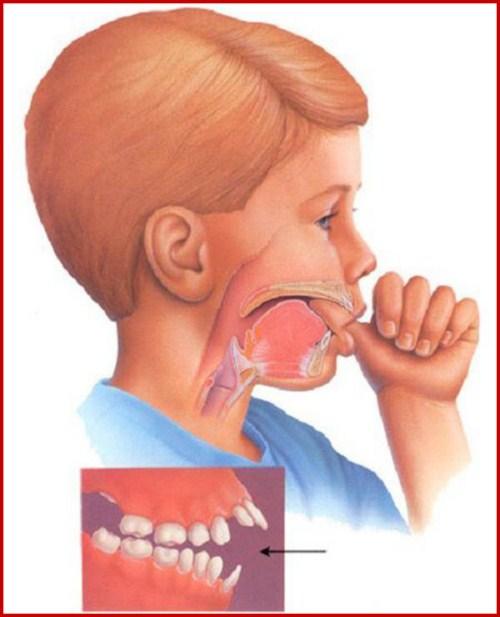 Cách điều trị răng hô được áp dụng hiện nay 2