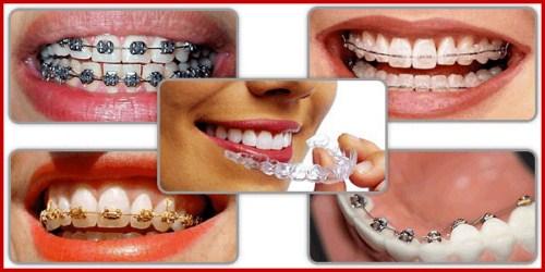 Cách điều trị răng hô được áp dụng hiện nay 3