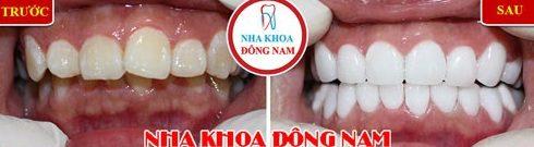Cách điều trị răng hô được áp dụng hiện nay 5