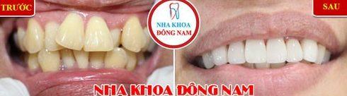 Cách điều trị răng hô được áp dụng hiện nay