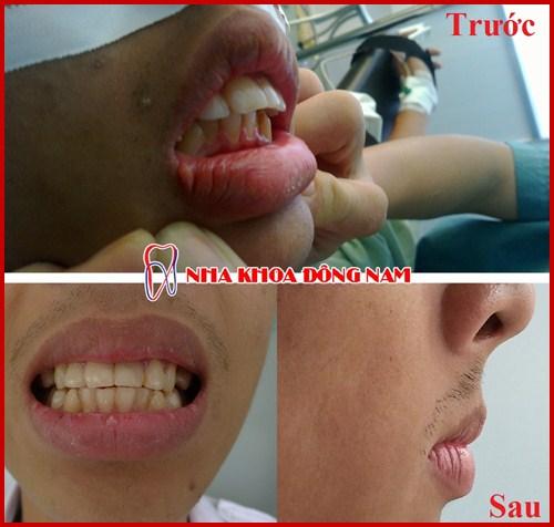 Cách điều trị răng hô được áp dụng hiện nay 8