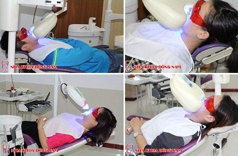 cách giảm ê buốt sau khi tẩy trắng răng 10