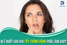 Cách giảm ê buốt cho răng bị ê buốt sau khi tẩy trắng
