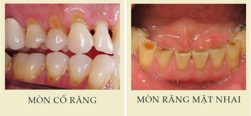 mòn răng