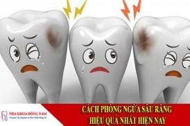 cách phòng ngừa sâu răng hiệu quả nhất hiện nay