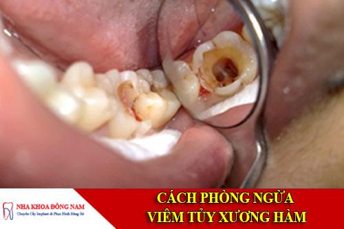 Cách phòng ngùa viêm tủy xương hàm