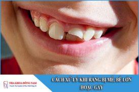 cách xử lý răng bị mẻ, bể lớn hoặc gãy