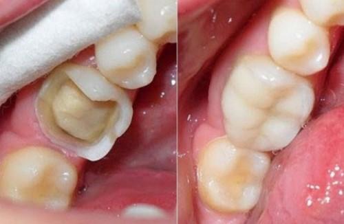 răng bị bể lớn