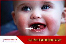 cần làm gì khi trẻ mọc răng