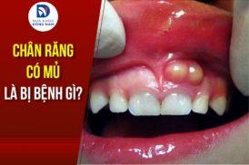 chân răng có mủ là bị bệnh gì