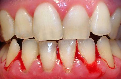 chân răng có mủ là bị bệnh gì 1
