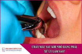 chảy máu sau khi nhổ răng phải xử lý làm sao