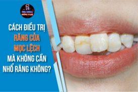Có cách điều trị răng cửa mọc lệch mà không cần nhổ răng không