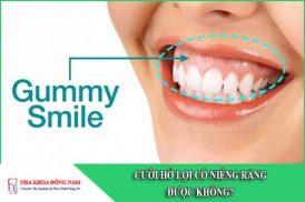 cười hở lợi có niềng răng được không