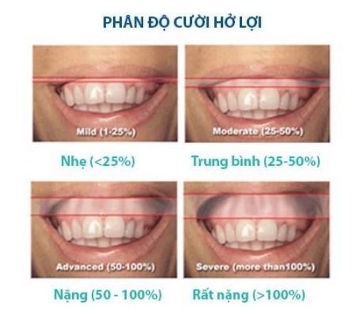 cười hở lợi có niềng răng được không 1