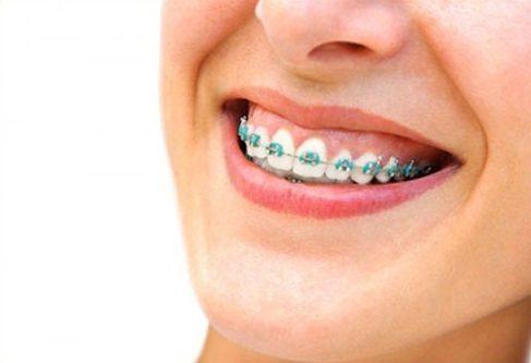 cười hở lợi có niềng răng được không 4