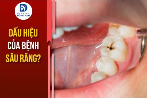 Dấu Hiệu Của Bệnh Sâu Răng