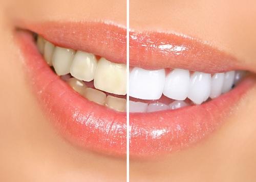 cách nhận biết sâu răng