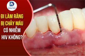 Đi làm răng bị Chảy Máu có nhiễm HIV không?