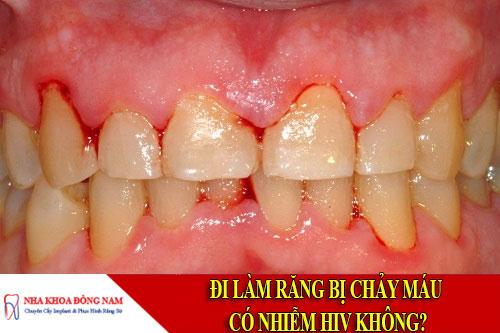 đi làm răng bị chảy máu có nhiễm hiv không