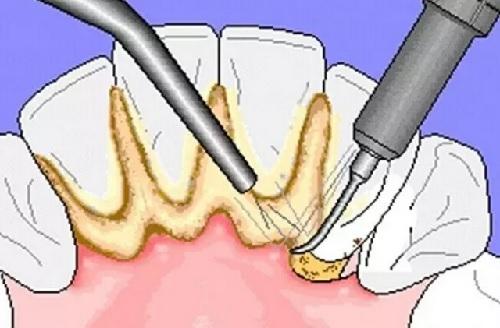 điều trị viêm nướu răng