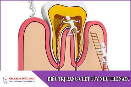 điều trị răng chết tủy như thế nào