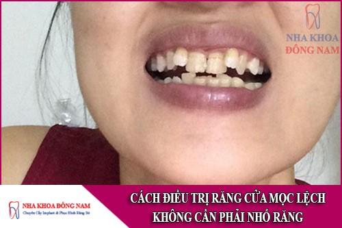 cách điều trị răng cửa mọc lệch mà không cần phải nhổ răng